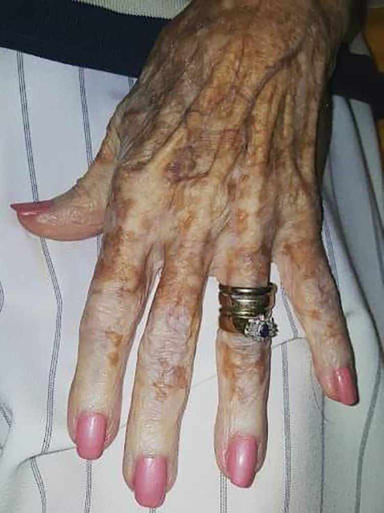«Τα χέρια σας λένε την ιστορία της ζωής σας»